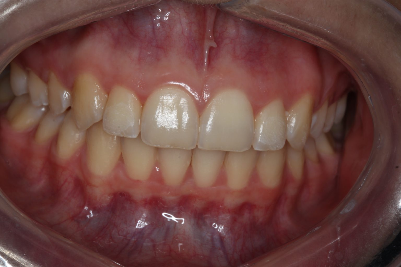 Invisalign After1
