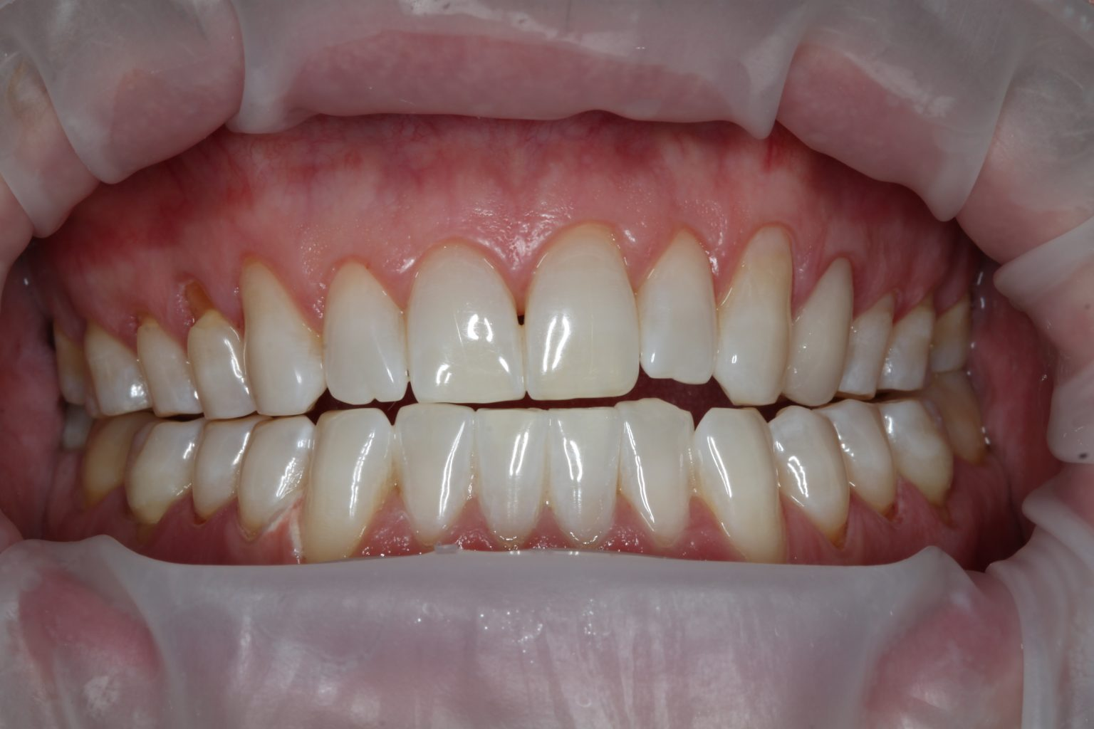 Kor Whitening After