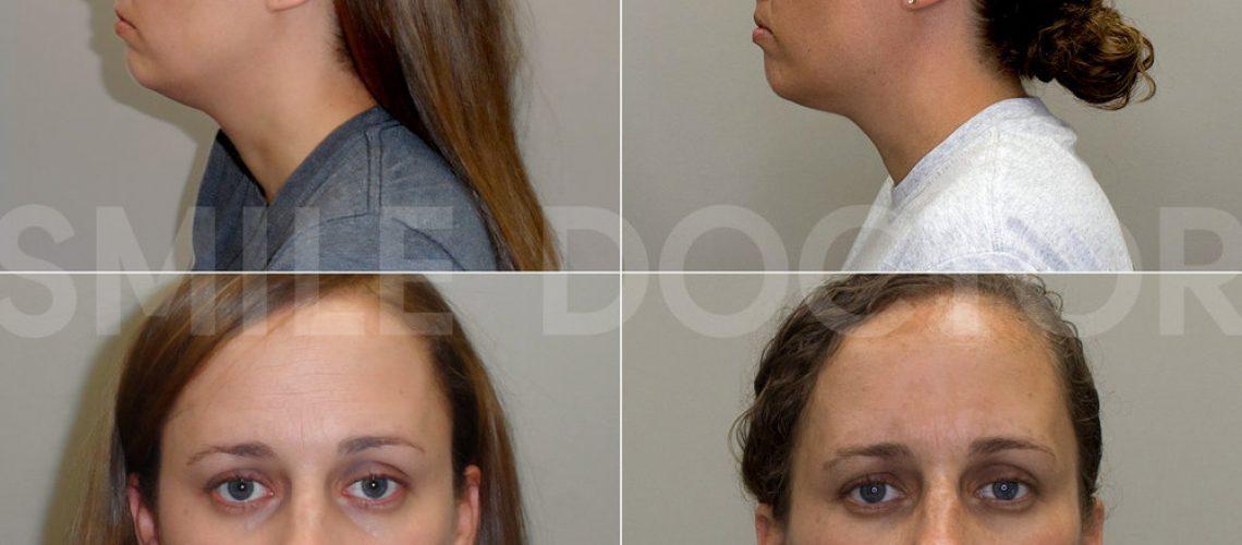 Agga Progress With Rachel Forwardontics Facial Growth Orthodontics 2019